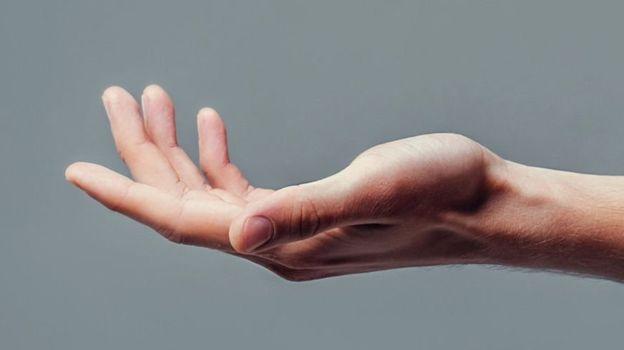 انتقال عصب حرکت به بازو و دست افراد فلج توسط جراحان استرالیایی