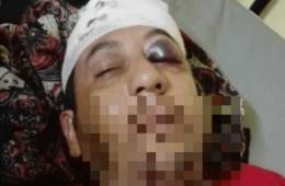 حمله به پناهجوی ایرانی در جزیره مانوس