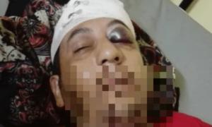 حمله به پناهجوی ایرانی در مانوس