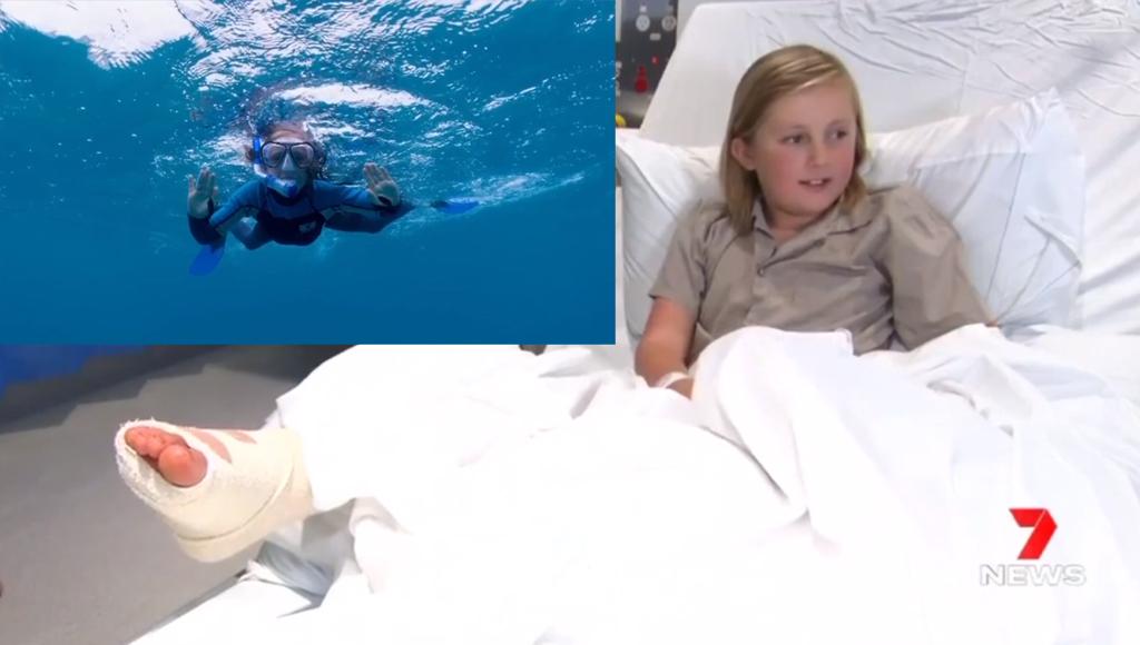 پسر ده ساله نجات یافته از حمله کوسه، از لحظات دلهرهآورش میگوید