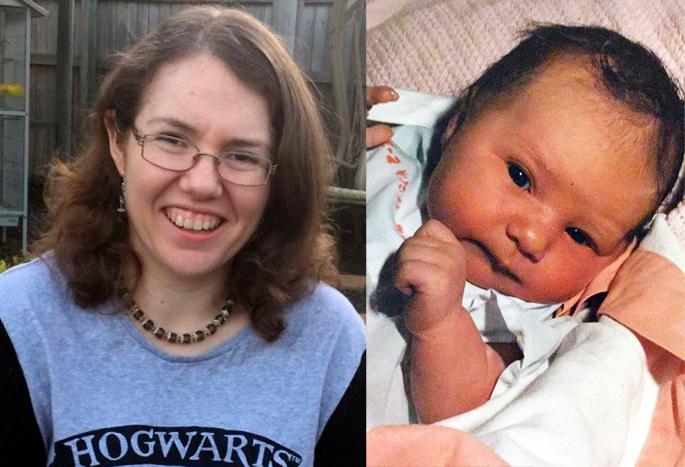 زن استرالیایی خاطرات دوازدهروزگیاش را به یاد دارد!